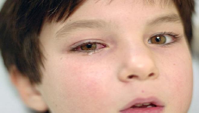 Cum protejăm copiii de alergiile oculare de primăvară