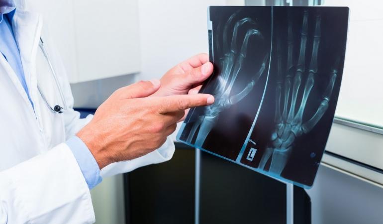 8 noiembrie – Ziua internațională a radiologiei