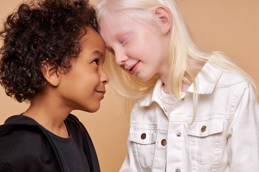 Ce este albinismul? Cauze și simptome